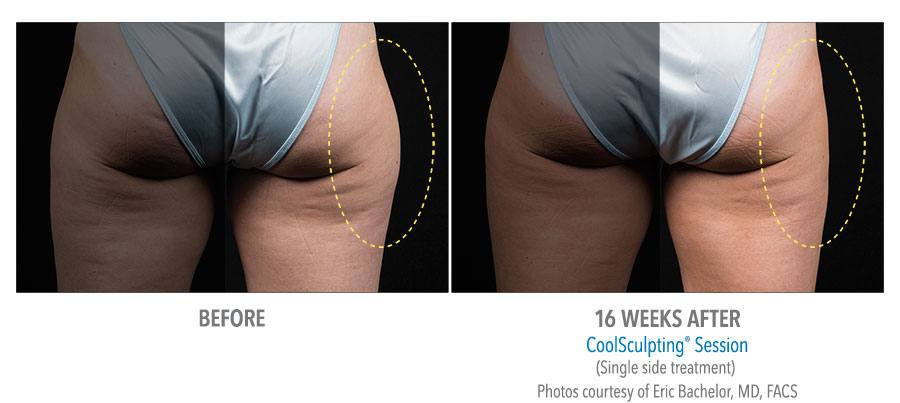 Coolsculpting Before & After hips