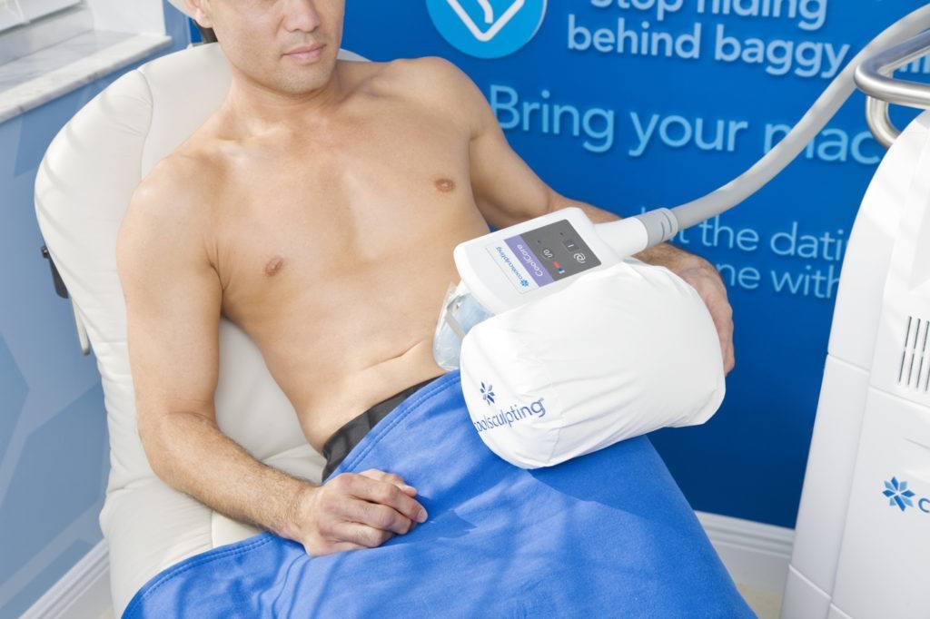 Male Coolsculpting Treatment