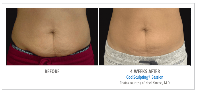 Coolsculpting B&A Stomach