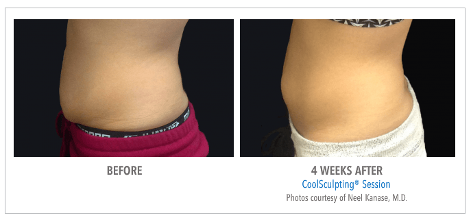 Coolsculpting Before & After courtesy of Neel Kanase M.D.