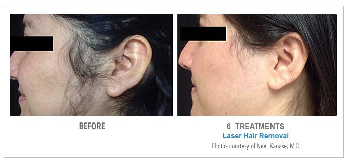Before After Photos Laser Hair Removal American Laser Med Spa