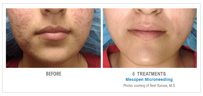 Before & After Microneedling: Pigmentation | American Laser Med Spa